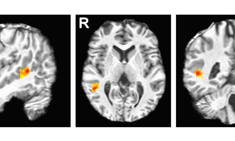 Facial expressions brain