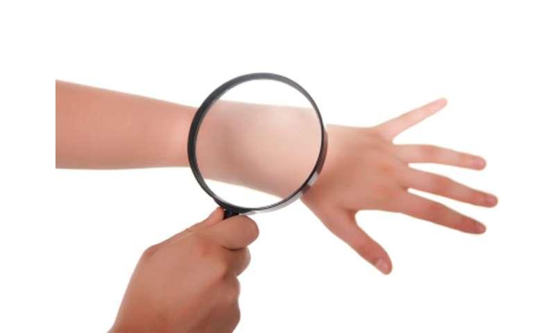 More than half of melanomas are self-detected