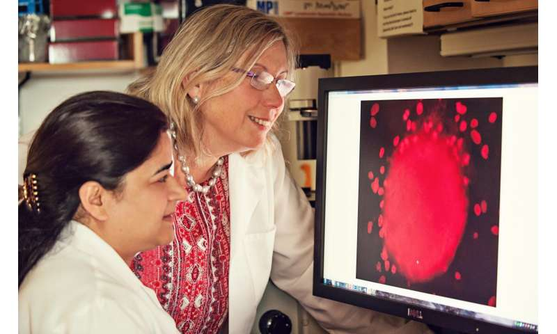 New compound shows potential for triple-negative breast cancer