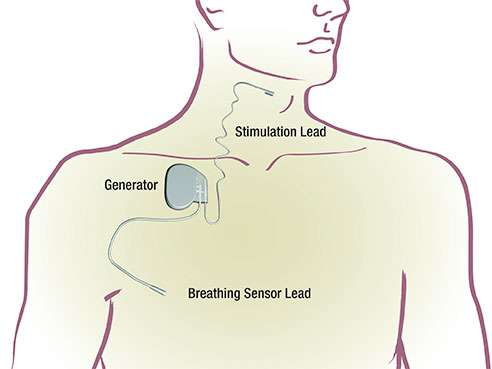New implantable device eases sleep apnea