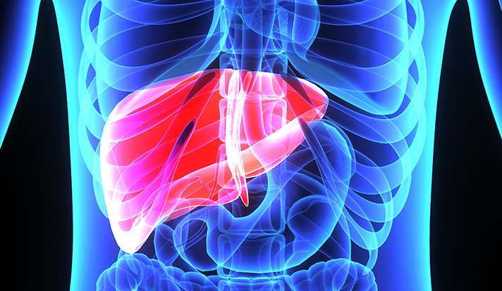 Research links fatty liver disease to type 2 diabetes