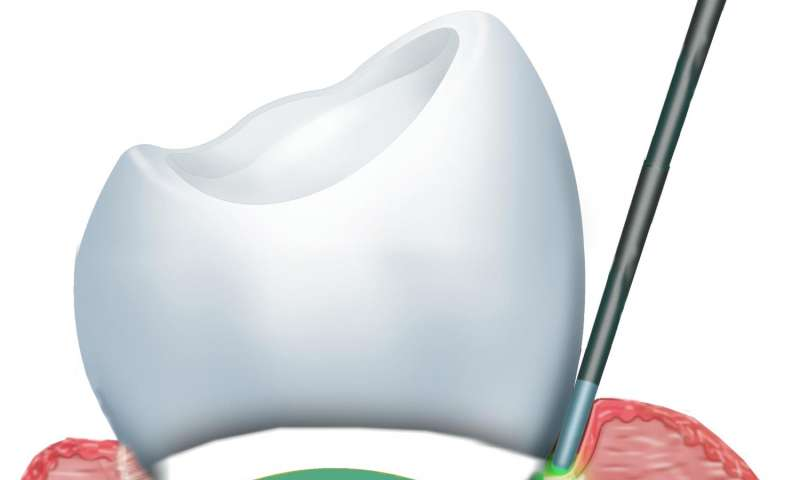 Study suggests benefits of laser treatments for dental problems