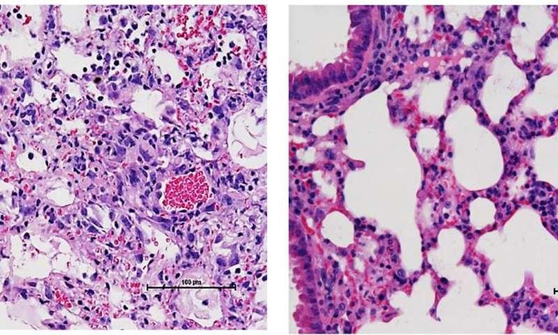New study explains why MRSA 'superbug' kills influenza patients