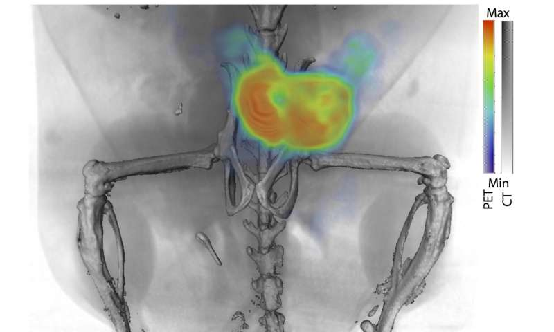 New imaging method can detect, monitor and guide treatment for, prostate cancer