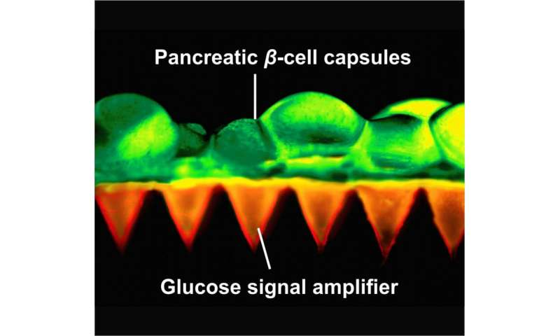 Scientists create painless patch of insulin-producing beta cells to control diabetes