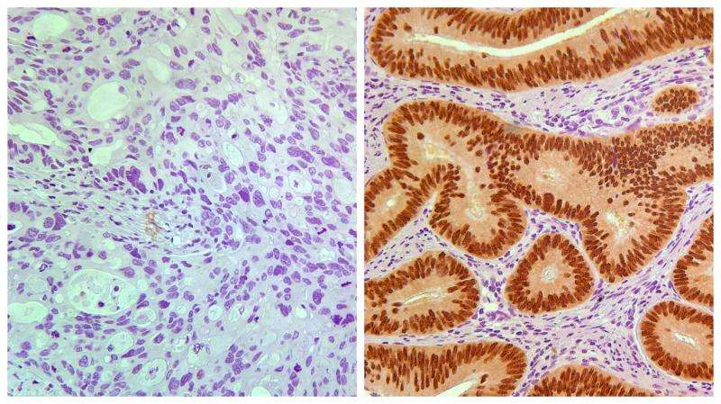 Biomarker predicts which stage II colon cancer patients may benefit from chemotherapy