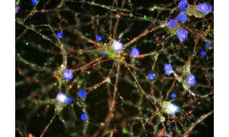 Genetic study provides first-ever insight into biological origin of schizophrenia