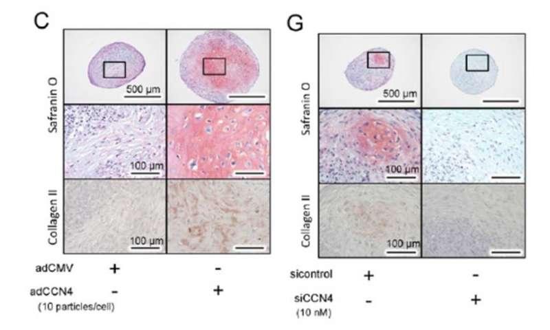 Study links signalling protein to osteoarthritis