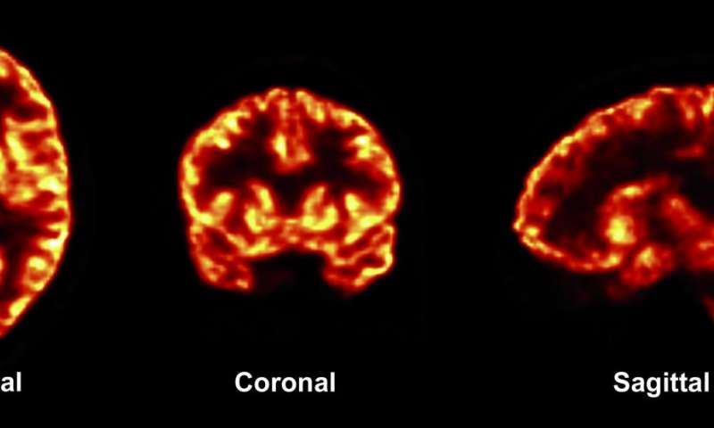 Scientists apply new imaging tool to common brain disorders