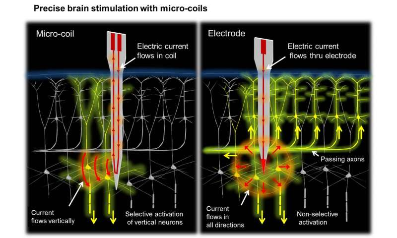 Magnetic stimulation may provide more precise, reliable activation of neural circuitry