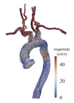 Scientists turn to 3D printing, digital simulations to treat heart disease