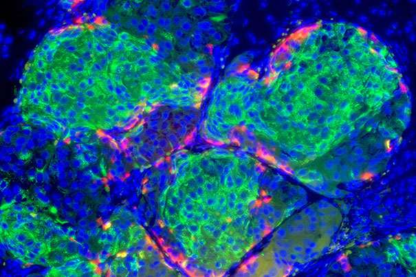Researchers develop process to generate insulin-producing beta cells in the pancreas