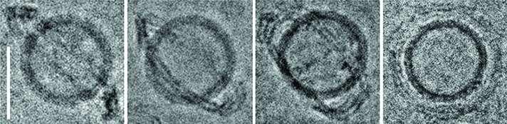 Scientists develop nanoscale vesicles for cellular deliveries