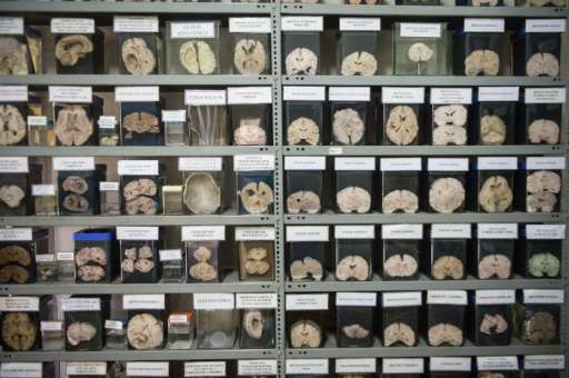 A collection of sick human brains is displayed at Santo Toribio de Mogrovejo Hospital