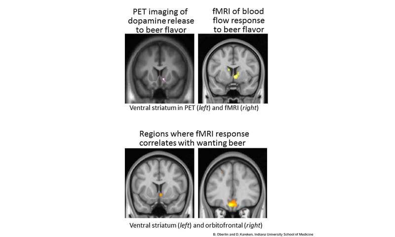 brain imaging techniques pdf