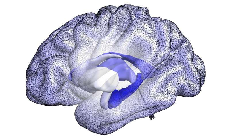 Advanced analysis of brain structure shape may track progression to Alzheimer's disease