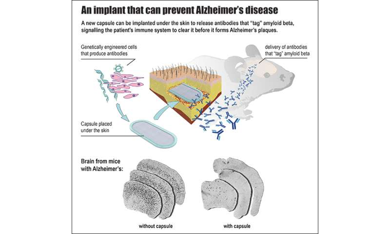 An implant to prevent Alzheimer's