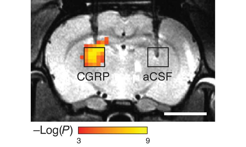 A radiation-free approach to imaging molecules in the brain