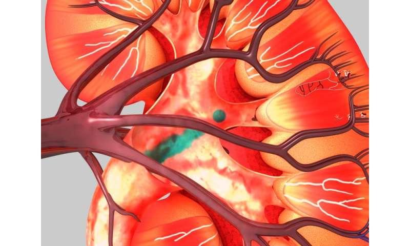 ASCO: cabozantinib improves progression-free survival in RCC