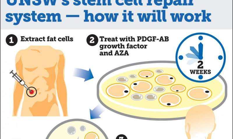 Scientists Develop Game Changing Stem Cell Repair System