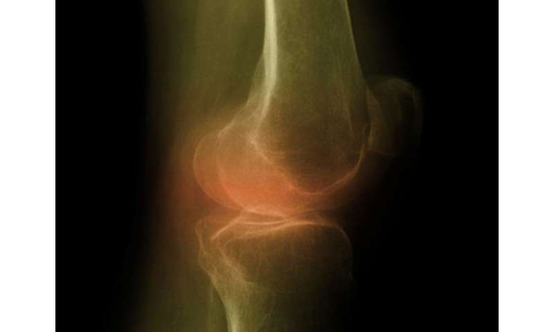 Autologous adipose-derived stromal cells may ease knee OA