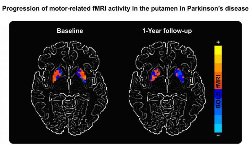 Biomarker breakthrough could improve Parkinson's treatment