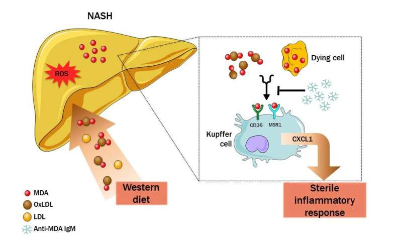 Biomarker for oxidative stress plays a major role in hepatic inflammation