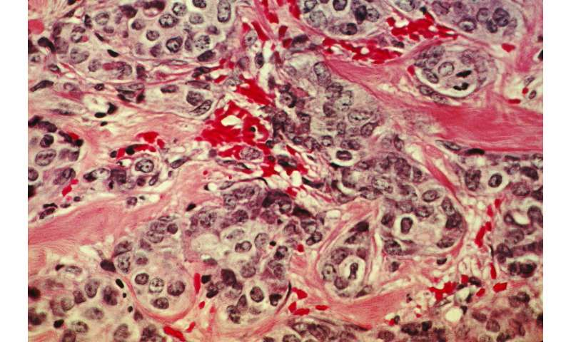 Cellular starvation kills treatment-resistant breast cancer