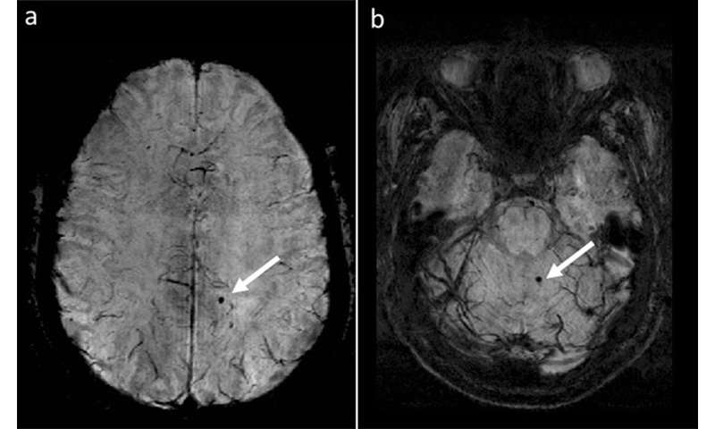 Cerebral microbleeds in MS are associated with increased risk for disability