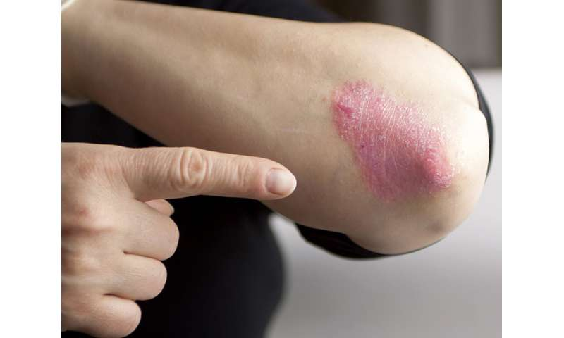 Clearing up common myths about psoriasis