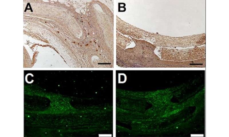 Collagen and heparan sulfate coatings alter cell proliferation and attachment