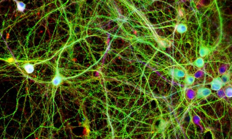 Discovery opens door to new Alzheimer's treatments