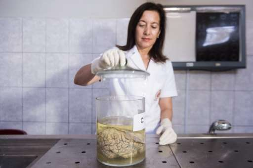 Doctor Diana Rivas opens a jar containing a human brain immersed in formaldehyde at the Santo Toribio de Mogrovejo Hospital
