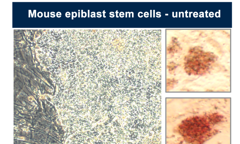 Drug makes stem cells become 'embryonic' again