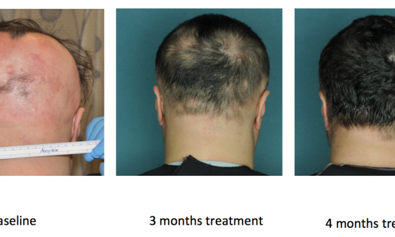 Drug Restores Hair Growth In Patients With Alopecia Areata
