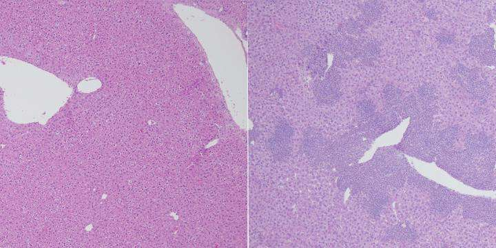 Dual loss of TET proteins prompts lethal upsurge in inflammatory T cells in a mouse model