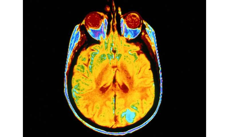 Dysglycemia affects brain structure, cognition in seniors