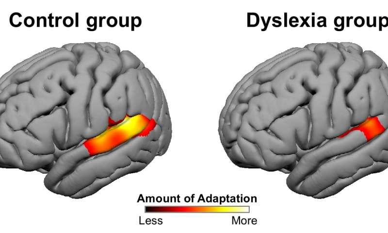 Distinctive Brain Pattern May Underlie >> Distinctive Brain Pattern May Underlie Dyslexia