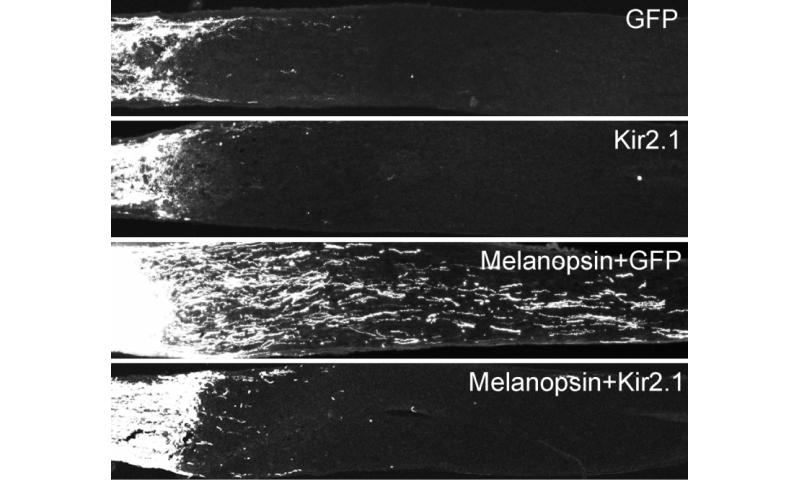 Enhancing neuronal activity promotes axon regeneration in adult CNS