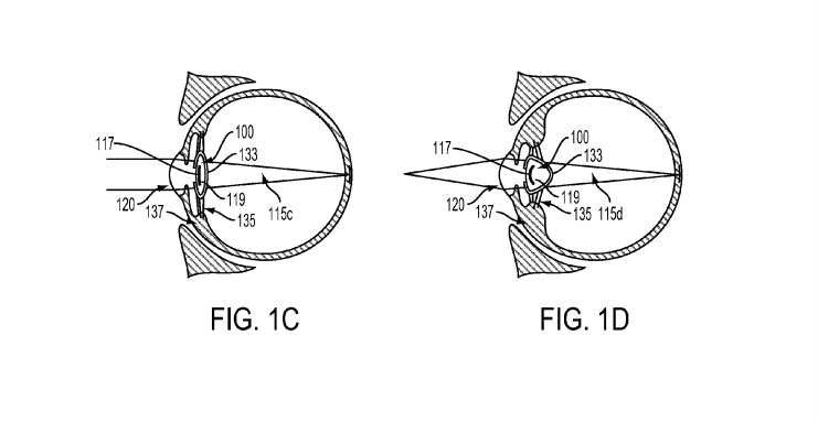 Google patent filing proposes device in eye to address poor vision