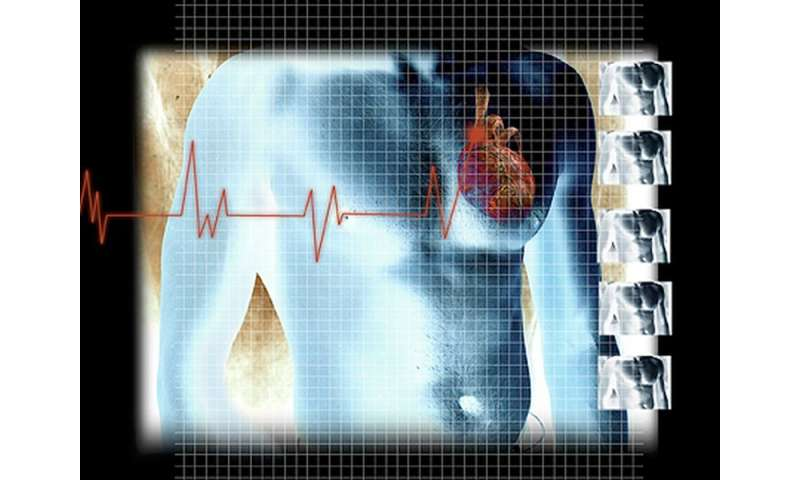 HMI impulses from ultrasound transducer beneficial in STEMI