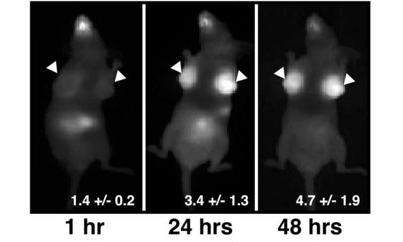 How a pill could improve breast cancer diagnoses