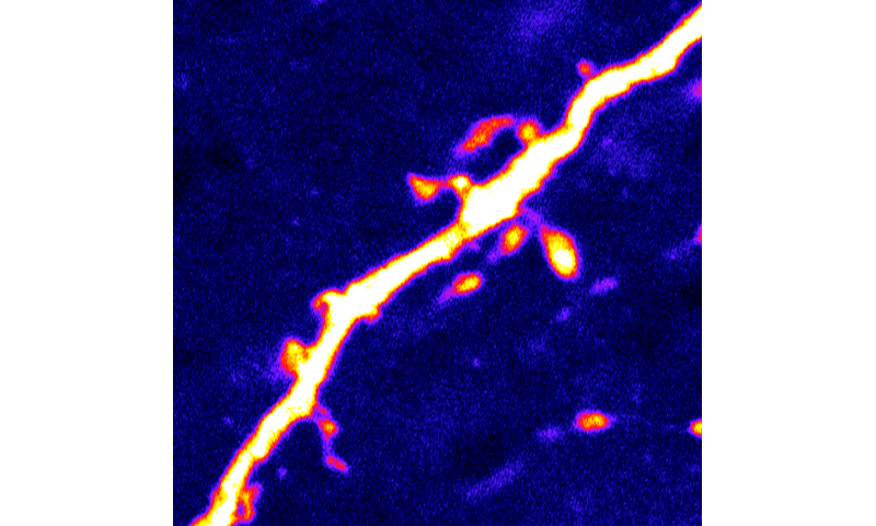 'Hunger' neurons in the brain are regulated by protein activated during fasting