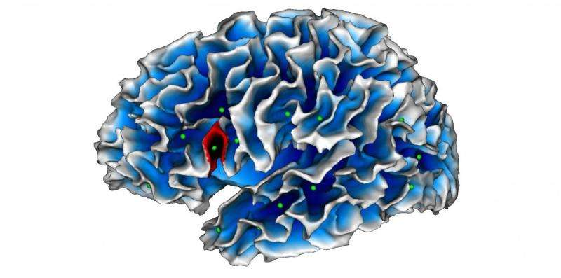 Is autism hiding in a fold of the brain?