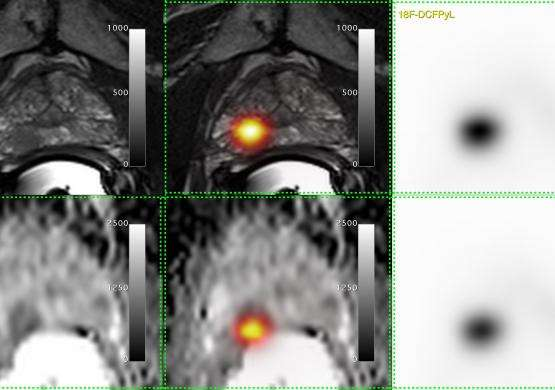 London researchers first in Canada to use improved prostate cancer imaging