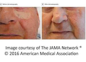 Medical tattooing improves perception of scar/graft appearance ...