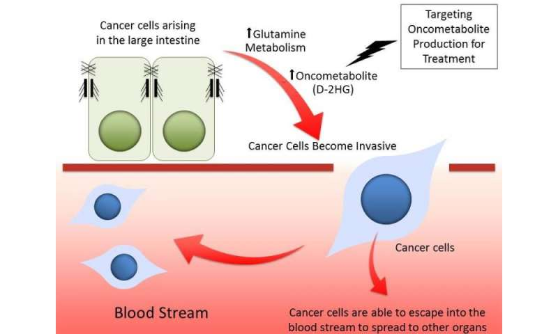 Metabolite that promotes cancer cell transformation and colorectal cancer spread identified