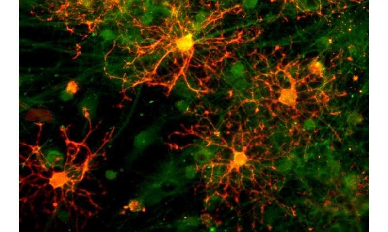 New clues to myelination could help identify ways to intervene in neurodegenerative diseases