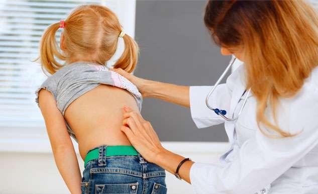 Paving the way to predicting spine deformities