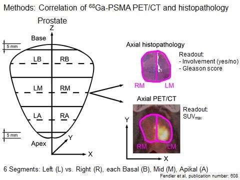 PET/CT imaging of prostate cancer proves accurate biopsy guide